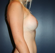 Breast Augmentation After Photo by Larry Weinstein, MD; Chester, NJ - Case 24761