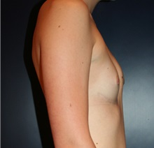 Breast Augmentation Before Photo by Larry Weinstein, MD; Chester, NJ - Case 24761