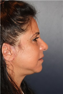 Facelift After Photo by Larry Weinstein, MD; Chester, NJ - Case 30654