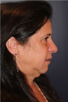 Facelift Before Photo by Larry Weinstein, MD; Chester, NJ - Case 30654