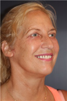 Facelift After Photo by Larry Weinstein, MD; Chester, NJ - Case 30655