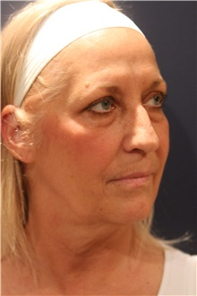 Facelift Before Photo by Larry Weinstein, MD; Chester, NJ - Case 30655