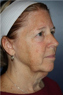 Facelift Before Photo by Larry Weinstein, MD; Chester, NJ - Case 30656
