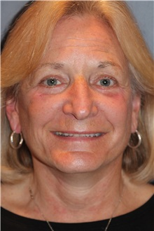 Facelift After Photo by Larry Weinstein, MD; Chester, NJ - Case 30657
