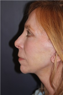 Facelift After Photo by Larry Weinstein, MD; Chester, NJ - Case 30658