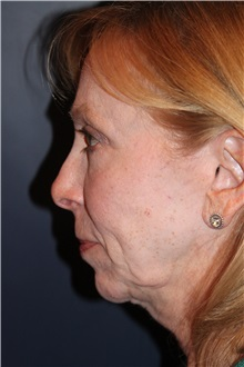 Facelift Before Photo by Larry Weinstein, MD; Chester, NJ - Case 30658