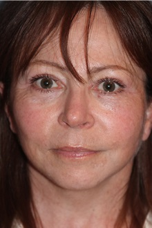 Facelift After Photo by Larry Weinstein, MD; Chester, NJ - Case 31778