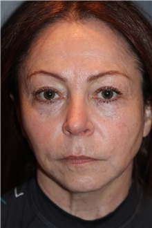 Facelift Before Photo by Larry Weinstein, MD; Chester, NJ - Case 31778