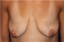 Breast Lift Before Photo by Larry Weinstein, MD; Chester, NJ - Case 31888