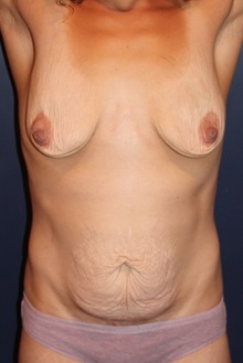 Tummy Tuck Before Photo by Larry Weinstein, MD; Chester, NJ - Case 31889