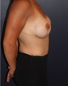 Breast Augmentation After Photo by Larry Weinstein, MD; Chester, NJ - Case 31890