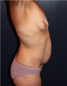 Breast Augmentation Before Photo by Larry Weinstein, MD; Chester, NJ - Case 31890