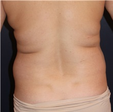 Liposuction Before Photo by Larry Weinstein, MD; Chester, NJ - Case 31891