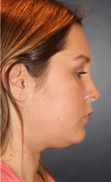 Liposuction Before Photo by Larry Weinstein, MD; Chester, NJ - Case 31893