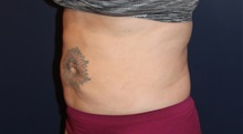 Liposuction After Photo by Larry Weinstein, MD; Chester, NJ - Case 31894
