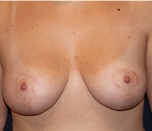 Breast Lift After Photo by Larry Weinstein, MD; Chester, NJ - Case 31922