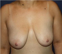 Breast Lift Before Photo by Larry Weinstein, MD; Chester, NJ - Case 31922