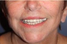 Lip Augmentation / Enhancement After Photo by Larry Weinstein, MD; Chester, NJ - Case 32499