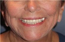 Lip Augmentation / Enhancement Before Photo by Larry Weinstein, MD; Chester, NJ - Case 32499