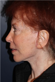 Facelift After Photo by Larry Weinstein, MD; Chester, NJ - Case 32500
