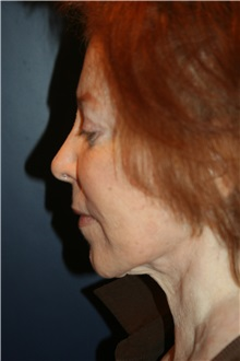 Facelift Before Photo by Larry Weinstein, MD; Chester, NJ - Case 32500