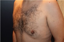 Male Breast Reduction After Photo by Larry Weinstein, MD; Chester, NJ - Case 32825