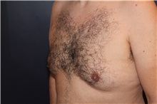 Male Breast Reduction Before Photo by Larry Weinstein, MD; Chester, NJ - Case 32825