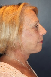 Facelift After Photo by Larry Weinstein, MD; Chester, NJ - Case 32827