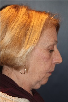 Facelift Before Photo by Larry Weinstein, MD; Chester, NJ - Case 32827