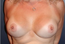 Breast Augmentation After Photo by Larry Weinstein, MD; Chester, NJ - Case 32828