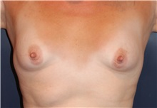 Breast Augmentation Before Photo by Larry Weinstein, MD; Chester, NJ - Case 32828
