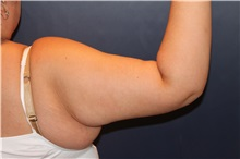 Arm Lift After Photo by Larry Weinstein, MD; Chester, NJ - Case 32853