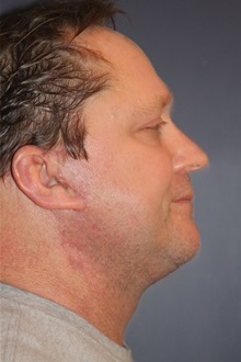 Facelift After Photo by Larry Weinstein, MD; Chester, NJ - Case 32904