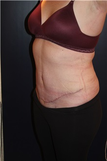 Body Contouring After Photo by Larry Weinstein, MD; Chester, NJ - Case 33668