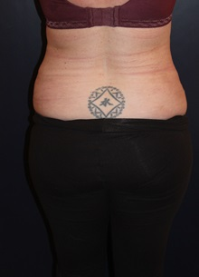 Liposuction After Photo by Larry Weinstein, MD; Chester, NJ - Case 33669