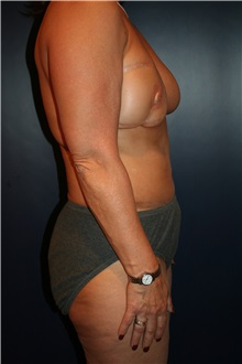 Breast Reconstruction Before Photo by Larry Weinstein, MD; Chester, NJ - Case 33971