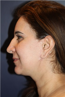 Chin Augmentation After Photo by Larry Weinstein, MD; Chester, NJ - Case 34127