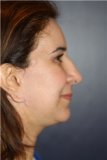 Chin Augmentation After Photo by Larry Weinstein, MD; Chester, NJ - Case 34128