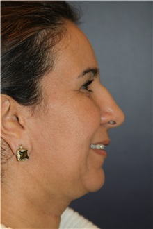 Chin Augmentation Before Photo by Larry Weinstein, MD; Chester, NJ - Case 34128