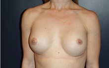 Breast Augmentation After Photo by Larry Weinstein, MD; Chester, NJ - Case 34752