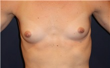 Breast Augmentation Before Photo by Larry Weinstein, MD; Chester, NJ - Case 34752