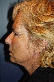 Facelift After Photo by Larry Weinstein, MD; Chester, NJ - Case 35845