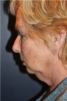 Facelift Before Photo by Larry Weinstein, MD; Chester, NJ - Case 35845