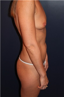 Breast Augmentation Before Photo by Larry Weinstein, MD; Chester, NJ - Case 35846
