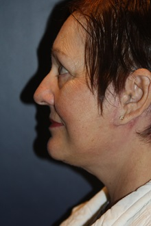 Facelift After Photo by Larry Weinstein, MD; Chester, NJ - Case 37442