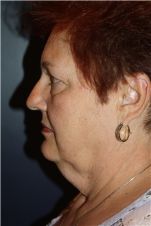 Facelift Before Photo by Larry Weinstein, MD; Chester, NJ - Case 37442