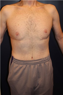Body Contouring After Photo by Larry Weinstein, MD; Chester, NJ - Case 37554
