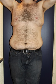 Body Contouring Before Photo by Larry Weinstein, MD; Chester, NJ - Case 37554