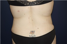 Body Contouring After Photo by Larry Weinstein, MD; Chester, NJ - Case 37709
