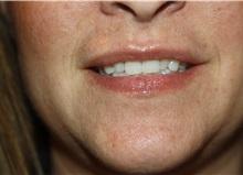 Lip Augmentation / Enhancement After Photo by Larry Weinstein, MD; Chester, NJ - Case 38227